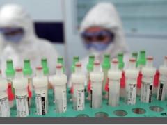 إسرائيل: أحرزنا تقدما في تطوير علاج من كورونا