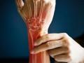 8 طرق طبيعية لمكافحة التهاب وألم المفاصل