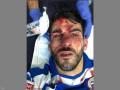 اصابة اللاعب نيلسون أوليفيرا، بجروح خطيرة في وجهه،